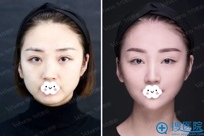 重庆当代曹美注射瘦脸针术后对比