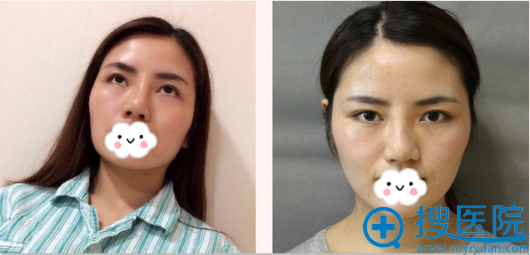 下颌角颧骨整形前的大方脸