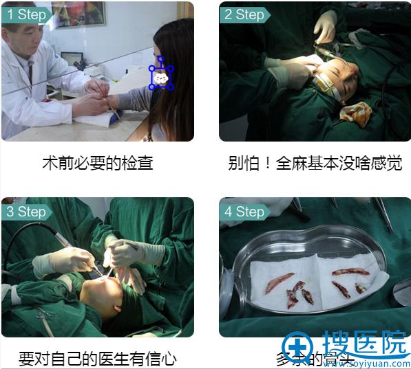下颌角+颧骨整形手术全过程