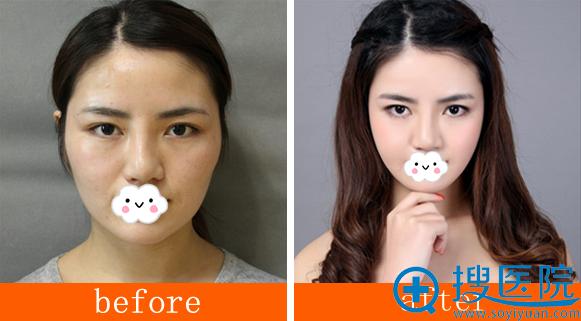洛阳王静下颌角颧骨整形手术前后对比