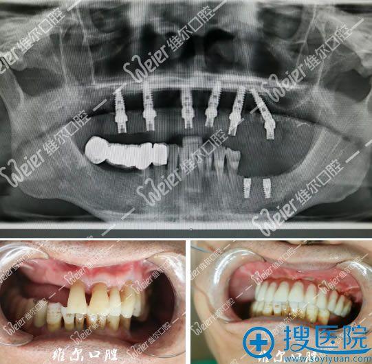 王大叔种植牙齿前后效果对比图