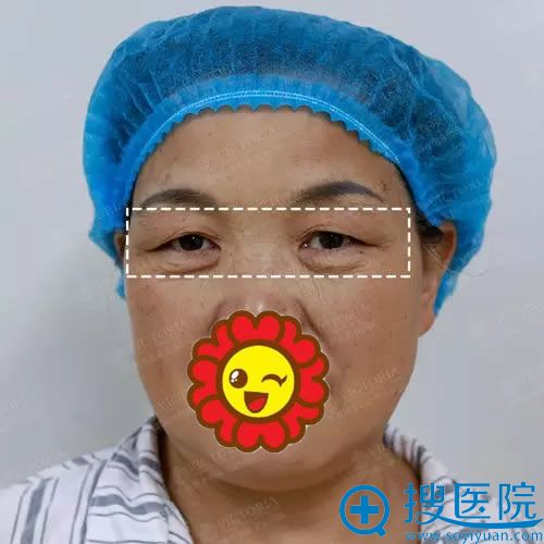 王阿姨做提眉术前照片