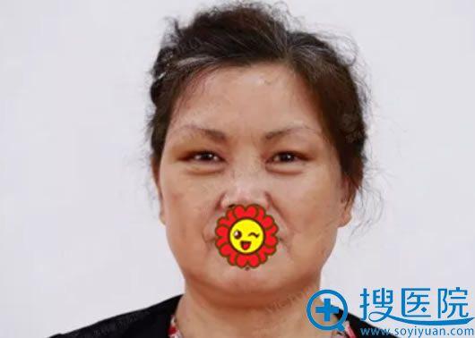 王阿姨做完提眉手术7天恢复效果