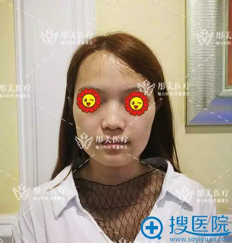 做鼻综合整形手术前的塌鼻子照片