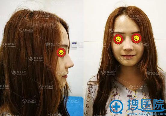 选择北京彤美隆鼻恢复过程图片