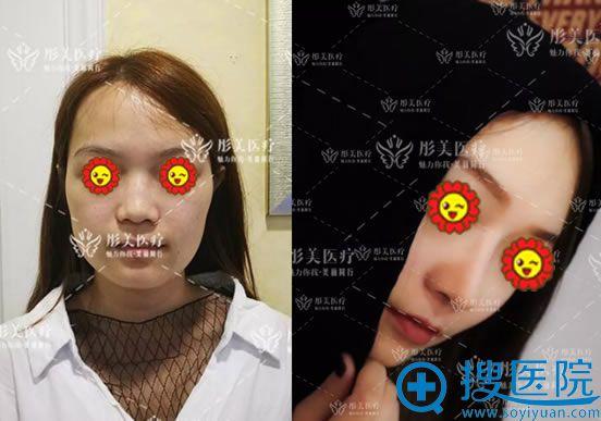 北京彤美李长赋做鼻子案例对比图