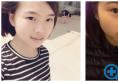 我跨省来到上海解放军455医院整形科找李宇飞做了隆鼻和双眼皮