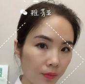 关于雅芳亚吴小玉主任医生亲自体验CGF面部综合抗衰手术报告