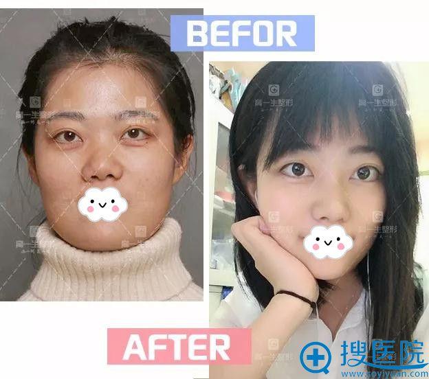 西安高一生综合隆鼻前后对比