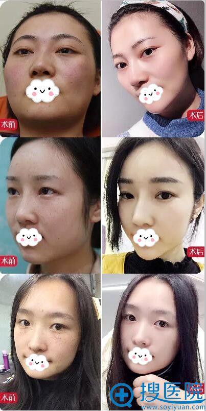 重庆星宸超皮秒祛斑真人案例对比