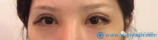 双眼皮手术后3天恢复情况