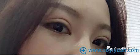 双眼皮手术半个月就美美哒