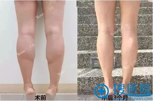 瘦腿针注射3个月后效果对比照