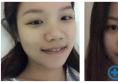 一个月前我找上海九院肖开颜医生做了鼻翼缩小和膨体鼻综合隆鼻