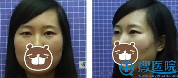 找龙剑虹做双眼皮手术前照片