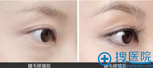 武汉大学中南医院整形美容科睫毛种植案例