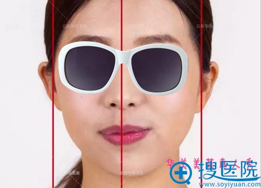 脸部不对称可能是牙齿畸形导致