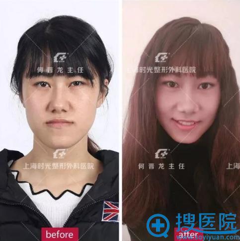 上海时光何晋龙地包天矫正案例