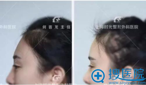 上海时光3D打印填充额头案例