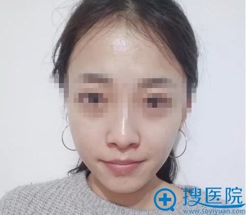 首次皮秒治疗祛斑美肤