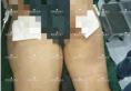 郑州阳光整形杨小顺双大腿水动力吸脂案例 术后15天腿围净瘦6cm