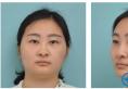 比较排斥假体隆鼻的我和上海九院张盈帆教授商量做了肋软骨隆鼻