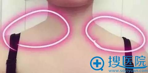 大同逆时光注射瘦脸除皱前有斜方肌效果
