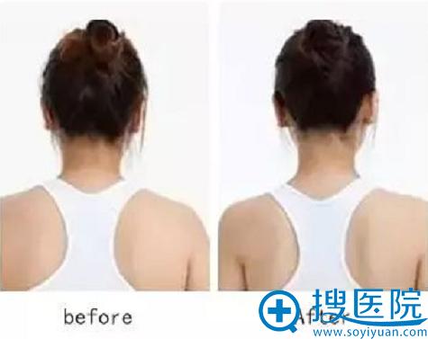 大同逆时光注射瘦脸除皱瘦肩后一周效果对比