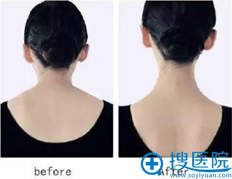 到大同逆时光注射瘦脸除皱瘦肩一月案例对比