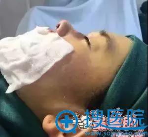 巩义恒颜医疗整形美容医院隆鼻术中
