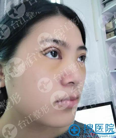 做全切双眼皮手术第1天效果