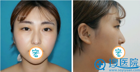 洛阳谢景良面部吸脂术后3个月恢复效果