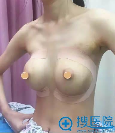 胸部整形术后第4天的照片
