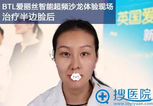 到天津美莱用英国BTL超级射频治疗半边脸对比