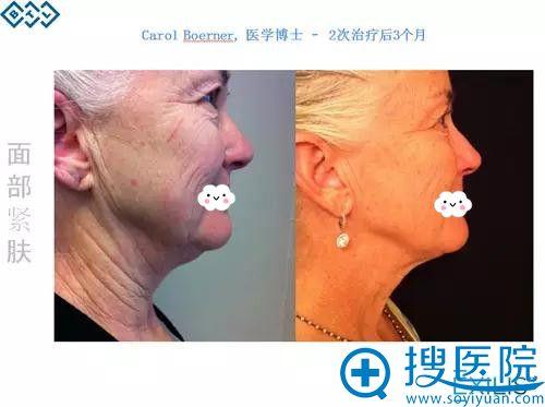 用英国BTL超级射频面部紧肤治疗3个月前后对比