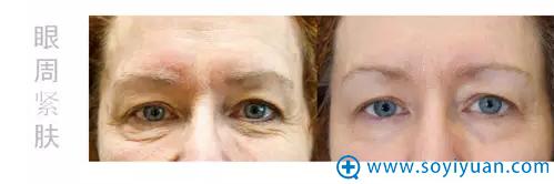 通过英国BTL超级射频眼周治疗2次效果对比