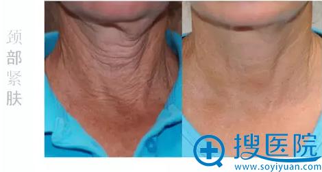 天津美莱英国BTL超级射频颈部治疗2次去皱案例对比
