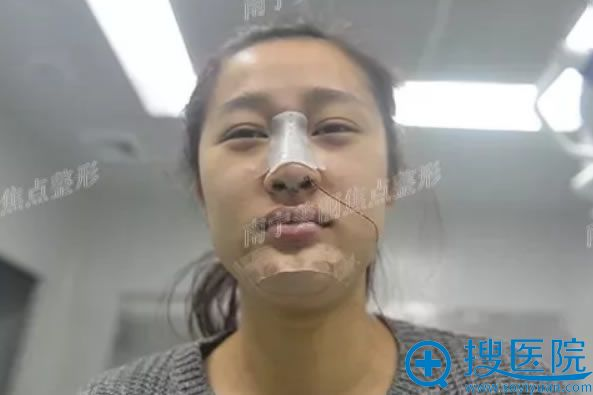 做完假体垫下巴手术即刻效果图