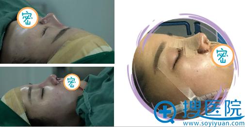 何俊杰膨体+耳软骨鼻综合术后即刻效果