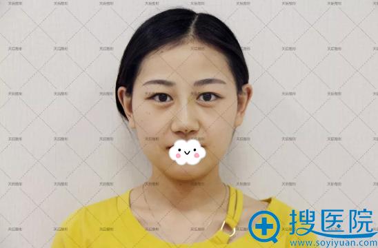郑州天后线雕隆鼻术后恢复效果