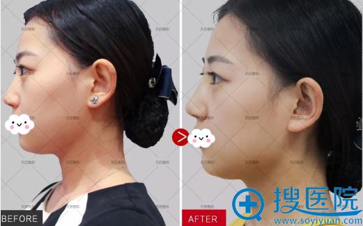 郑州天后线雕隆鼻术后侧脸对比照