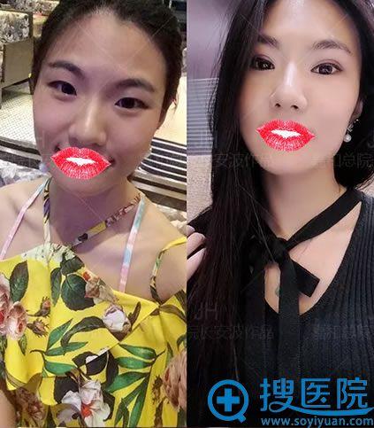 北京嘉和百旺双眼皮案例对比图