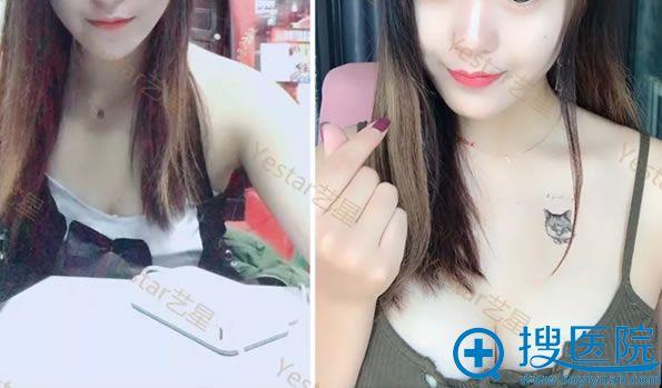艺星杨连华假体隆胸20天效果对比图