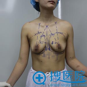 隆胸术前胸部小还下垂