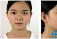听闺蜜的在贵阳美莱和华美中间选择了美莱做的鼻综合隆鼻