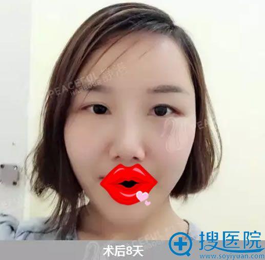 宁波静港程卫民脂肪填充案例8天效果