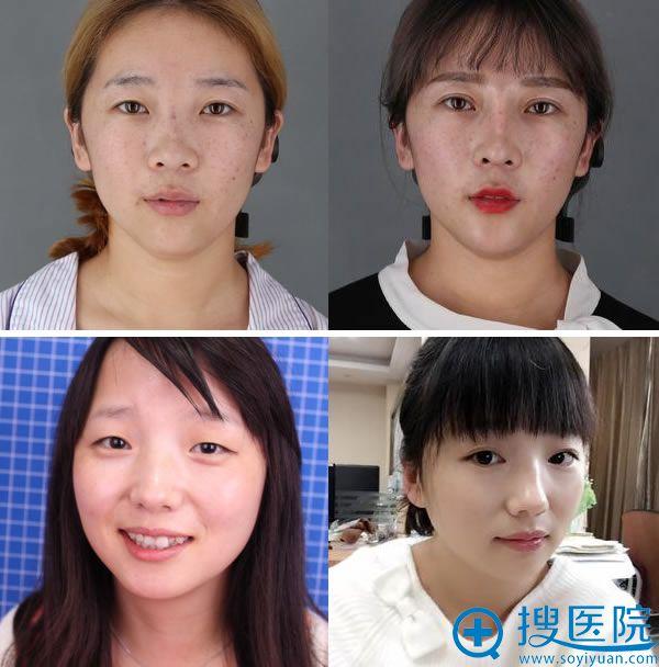 北京丽都医疗美容医院双眼皮案例