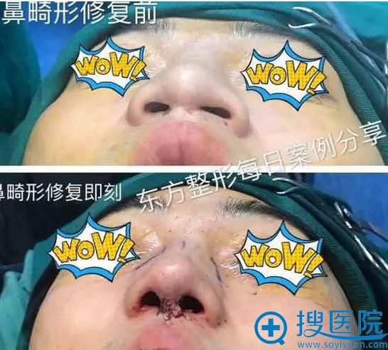 郑东学院长做的隆鼻失败修复案例对比图