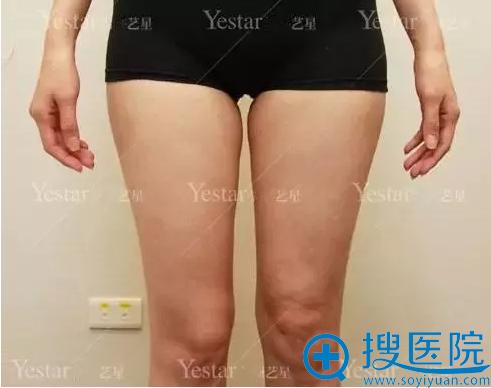 产后局部肥胖,大腿内侧赘肉比较多