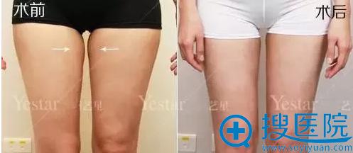 西安艺星大腿吸脂术前术后对比
